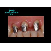 Dental PFM Crown White Gold Dental Post and Core  in Dentistry