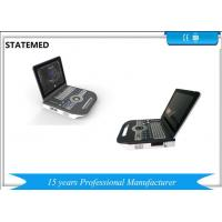 Quality Laptop Ultrasound Doppler Vaginal Ultrasound Scanners Equipment With High Definition Images for sale